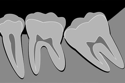 親知らずの抜歯