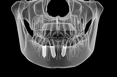 まるで自分の歯のような使い心地インプラントで豊かな食生活を